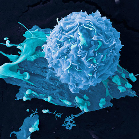 Molecular Pathology and Diagnosis of Cancer Thumbnail (Logo)