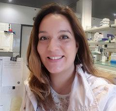 Diana Vieira (Instituto Gulbenkian de Ciência, Portugal)